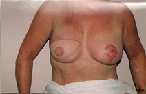 Breast Reconstruction After Photo by Joe Griffin, MD; Florence, SC - Case 22832