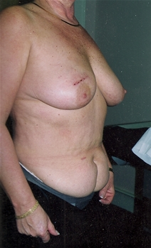 Breast Reconstruction Before Photo by Joe Griffin, MD; Florence, SC - Case 22832