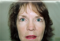 Eyelid Surgery After Photo by Joe Griffin, MD; Florence, SC - Case 22851