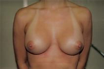 Breast Augmentation After Photo by Joe Griffin, MD; Florence, SC - Case 22853