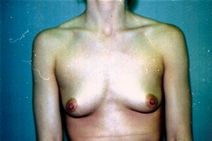 Breast Augmentation Before Photo by Joe Griffin, MD; Florence, SC - Case 22853
