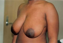 Breast Reduction Before Photo by Joe Griffin, MD; Florence, SC - Case 22854