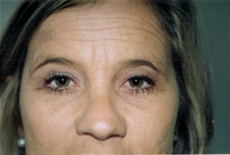 Eyelid Surgery After Photo by Joe Griffin, MD; Florence, SC - Case 22890