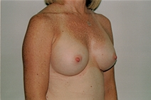Breast Augmentation After Photo by Joe Griffin, MD; Florence, SC - Case 23469
