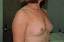Breast Augmentation Before Photo by Joe Griffin, MD; Florence, SC - Case 23469