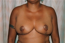 Breast Reduction After Photo by Joe Griffin, MD; Florence, SC - Case 23470