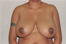 Breast Reduction Before Photo by Joe Griffin, MD; Florence, SC - Case 23470