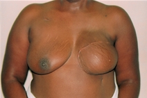 Breast Reconstruction After Photo by Joe Griffin, MD; Florence, SC - Case 23471