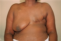 Breast Reconstruction Before Photo by Joe Griffin, MD; Florence, SC - Case 23471