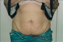 Tummy Tuck Before Photo by Joe Griffin, MD; Florence, SC - Case 24079