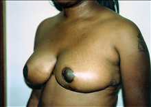Breast Reduction After Photo by Joe Griffin, MD; Florence, SC - Case 24085