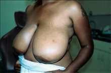 Breast Reduction Before Photo by Joe Griffin, MD; Florence, SC - Case 24085