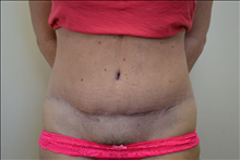 Tummy Tuck After Photo by Joe Griffin, MD; Florence, SC - Case 24416