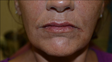 Dermal Fillers After Photo by Joe Griffin, MD; Florence, SC - Case 24847