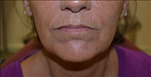 Dermal Fillers Before Photo by Joe Griffin, MD; Florence, SC - Case 24847