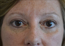 Eyelid Surgery After Photo by Joe Griffin, MD; Florence, SC - Case 24849