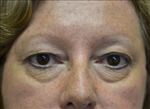 Eyelid Surgery Before Photo by Joe Griffin, MD; Florence, SC - Case 24849