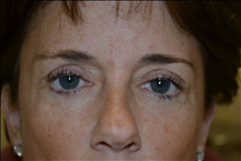 Eyelid Surgery After Photo by Joe Griffin, MD; Florence, SC - Case 24850