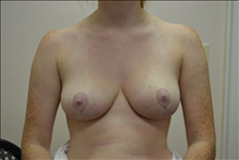 Breast Reduction After Photo by Joe Griffin, MD; Florence, SC - Case 24959