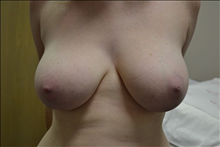 Breast Reduction Before Photo by Joe Griffin, MD; Florence, SC - Case 24959