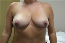 Breast Reduction After Photo by Joe Griffin, MD; Florence, SC - Case 24960