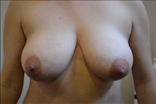 Breast Reduction Before Photo by Joe Griffin, MD; Florence, SC - Case 24960