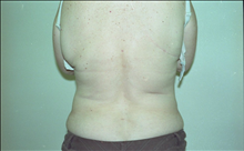 Liposuction After Photo by Joe Griffin, MD; Florence, SC - Case 24961