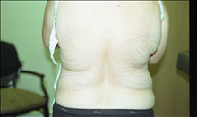 Liposuction Before Photo by Joe Griffin, MD; Florence, SC - Case 24961