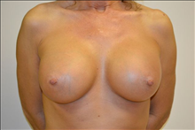 Breast Augmentation After Photo by Joe Griffin, MD; Florence, SC - Case 24962