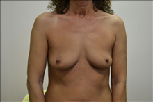 Breast Augmentation Before Photo by Joe Griffin, MD; Florence, SC - Case 24962