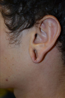 Ear Surgery Before Photo by Joe Griffin, MD; Florence, SC - Case 24963