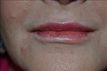 Dermal Fillers After Photo by Joe Griffin, MD; Florence, SC - Case 25081