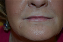 Dermal Fillers Before Photo by Joe Griffin, MD; Florence, SC - Case 25081