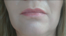 Dermal Fillers After Photo by Joe Griffin, MD; Florence, SC - Case 25082