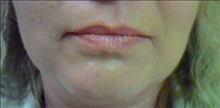 Dermal Fillers Before Photo by Joe Griffin, MD; Florence, SC - Case 25082