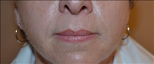 Dermal Fillers After Photo by Joe Griffin, MD; Florence, SC - Case 25083