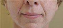 Dermal Fillers Before Photo by Joe Griffin, MD; Florence, SC - Case 25083