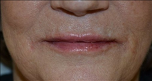 Dermal Fillers After Photo by Joe Griffin, MD; Florence, SC - Case 25084