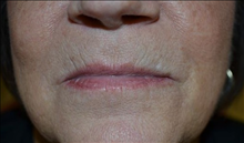 Dermal Fillers Before Photo by Joe Griffin, MD; Florence, SC - Case 25084