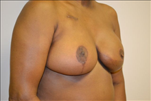 Breast Reconstruction After Photo by Joe Griffin, MD; Florence, SC - Case 25087