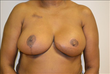 Breast Reconstruction Before Photo by Joe Griffin, MD; Florence, SC - Case 25087