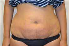 Tummy Tuck Before Photo by Joe Griffin, MD; Florence, SC - Case 25088