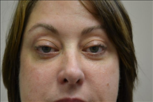Eyelid Surgery After Photo by Joe Griffin, MD; Florence, SC - Case 25089