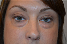 Eyelid Surgery Before Photo by Joe Griffin, MD; Florence, SC - Case 25089