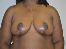 Breast Reduction After Photo by Joe Griffin, MD; Florence, SC - Case 25832
