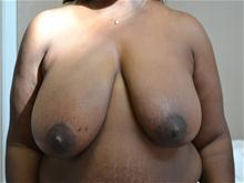 Breast Reduction Before Photo by Joe Griffin, MD; Florence, SC - Case 25832