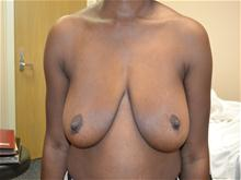Breast Lift Before Photo by Joe Griffin, MD; Florence, SC - Case 25835