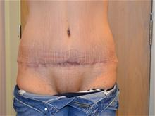 Tummy Tuck After Photo by Joe Griffin, MD; Florence, SC - Case 25844