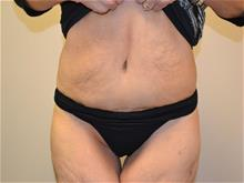 Tummy Tuck After Photo by Joe Griffin, MD; Florence, SC - Case 29391