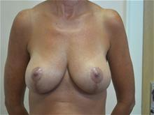 Breast Lift After Photo by Joe Griffin, MD; Florence, SC - Case 29392